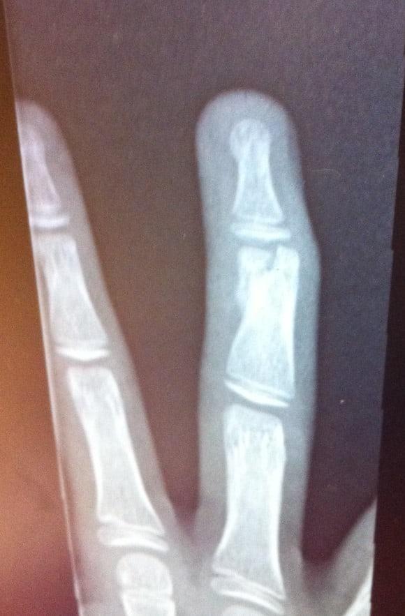 josh-broken-finger-1